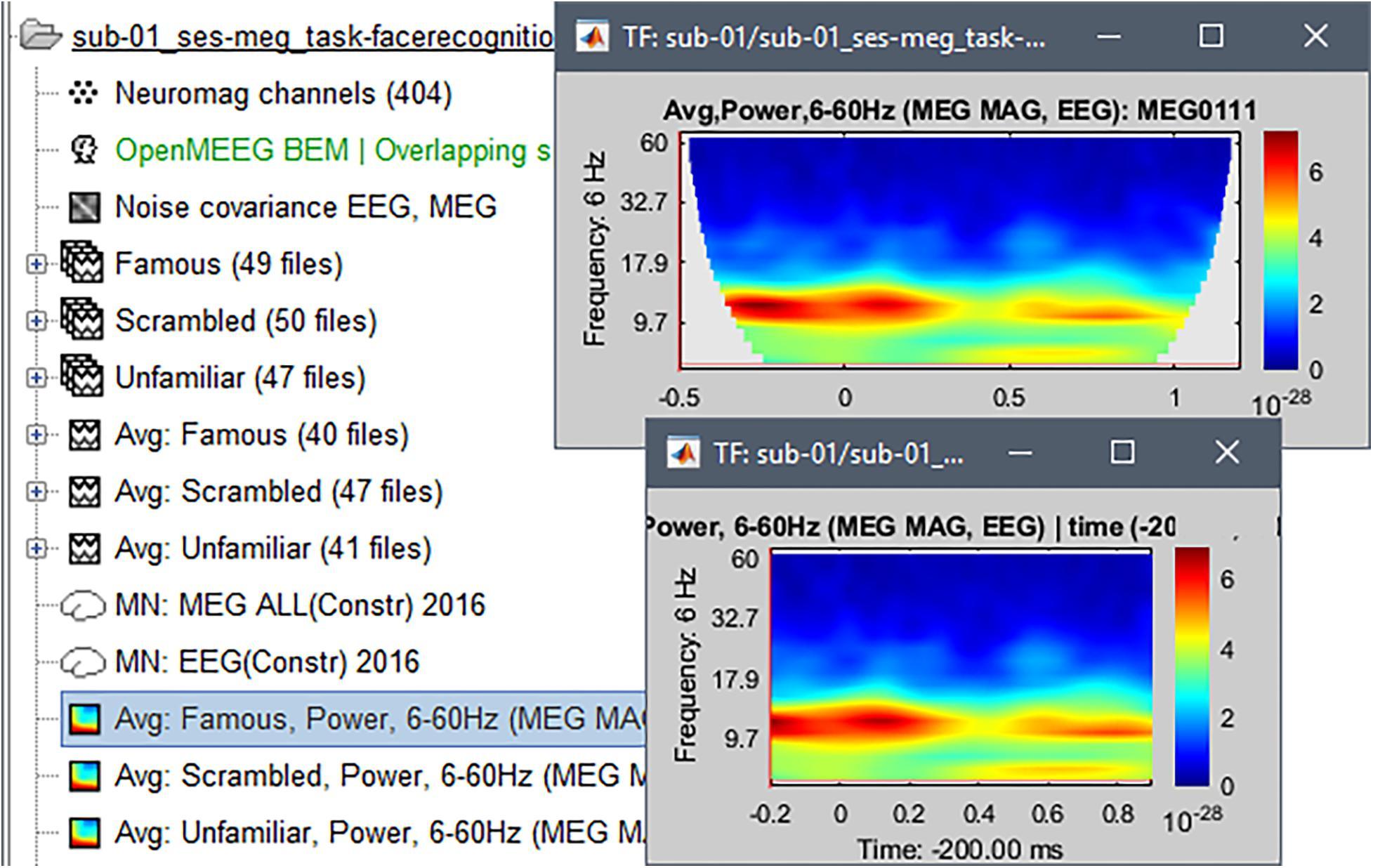 Frontiers | MEG/EEG Group Analysis With Brainstorm | Neuroscience
