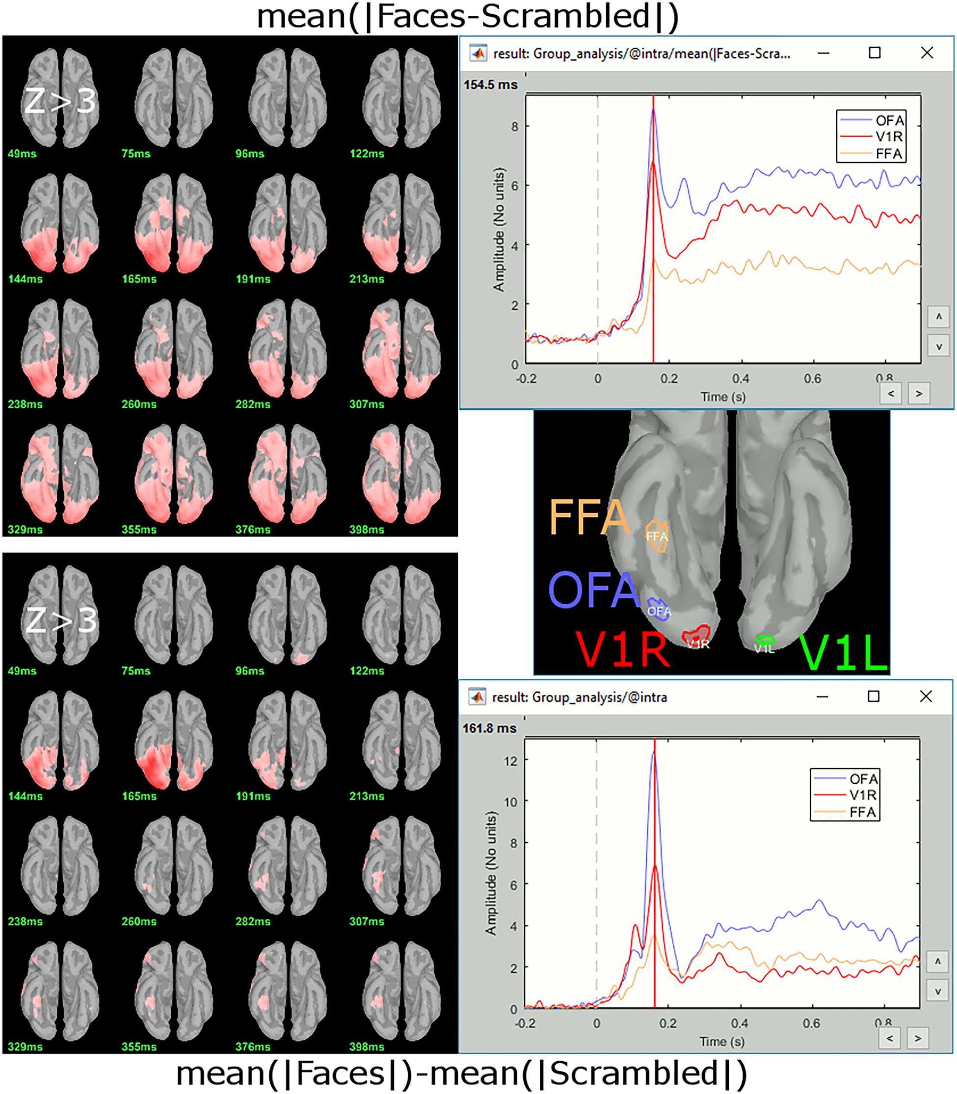 Frontiers | MEG/EEG Group Analysis With Brainstorm | Neuroscience