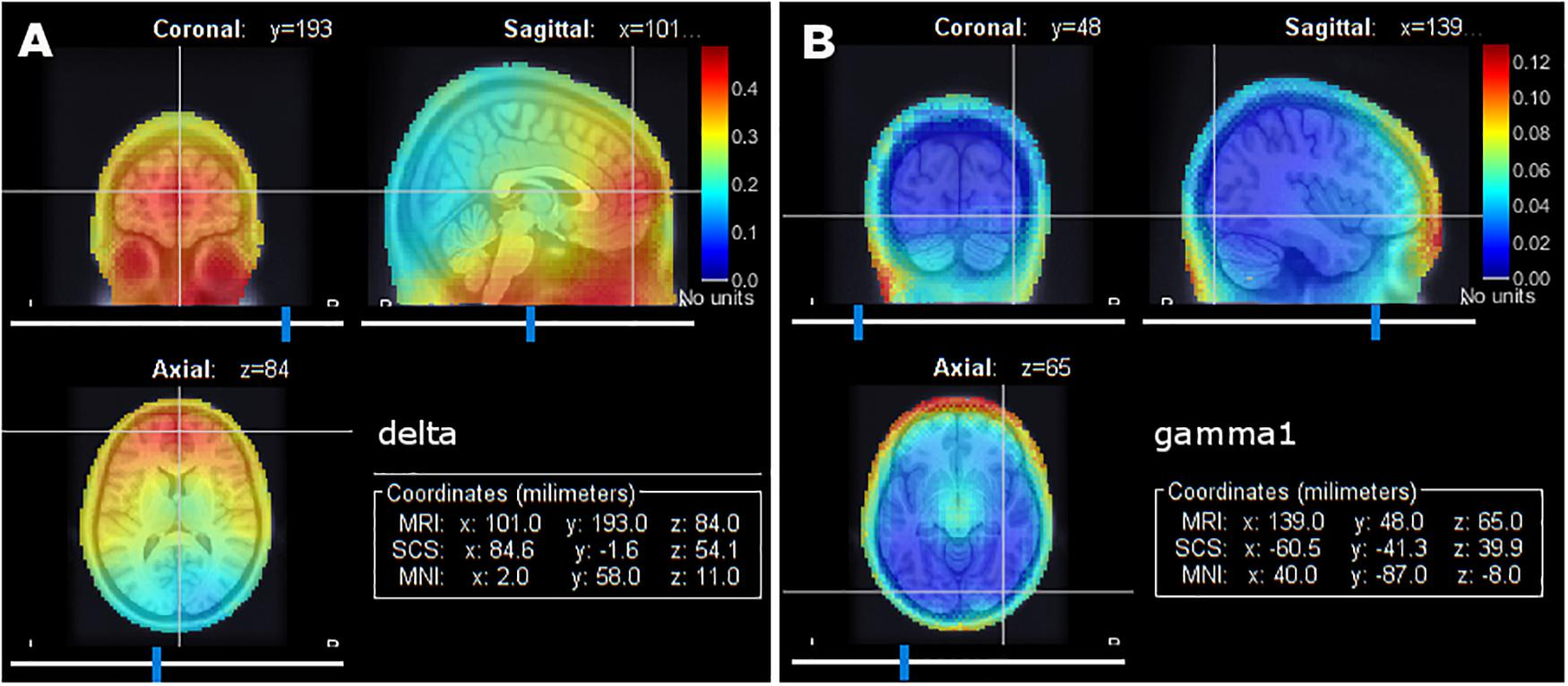 Frontiers | Brainstorm Pipeline Analysis of Resting-State Data From
