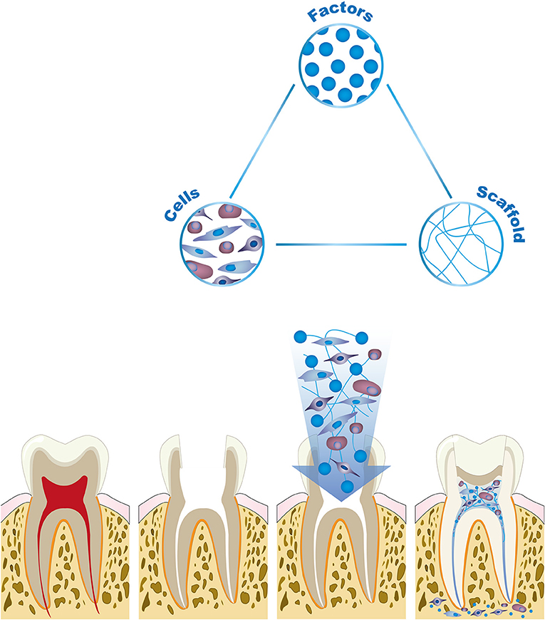 Figure 2 - Tooth and pulp regeneration is based on tissue engineering research, which aims to rebuild lost body parts and organs.