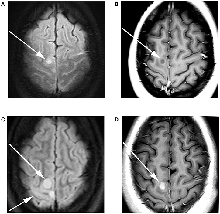 Frontiers   Extraneural Metastases From a High-Grade Glioma (HGG