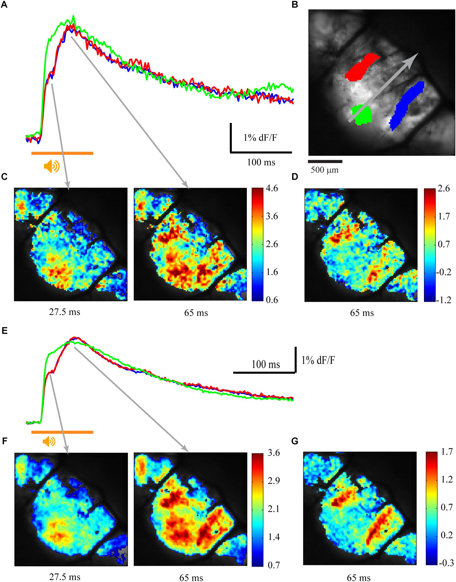 Frontiers | Large Scale Calcium Imaging of the Cerebellar