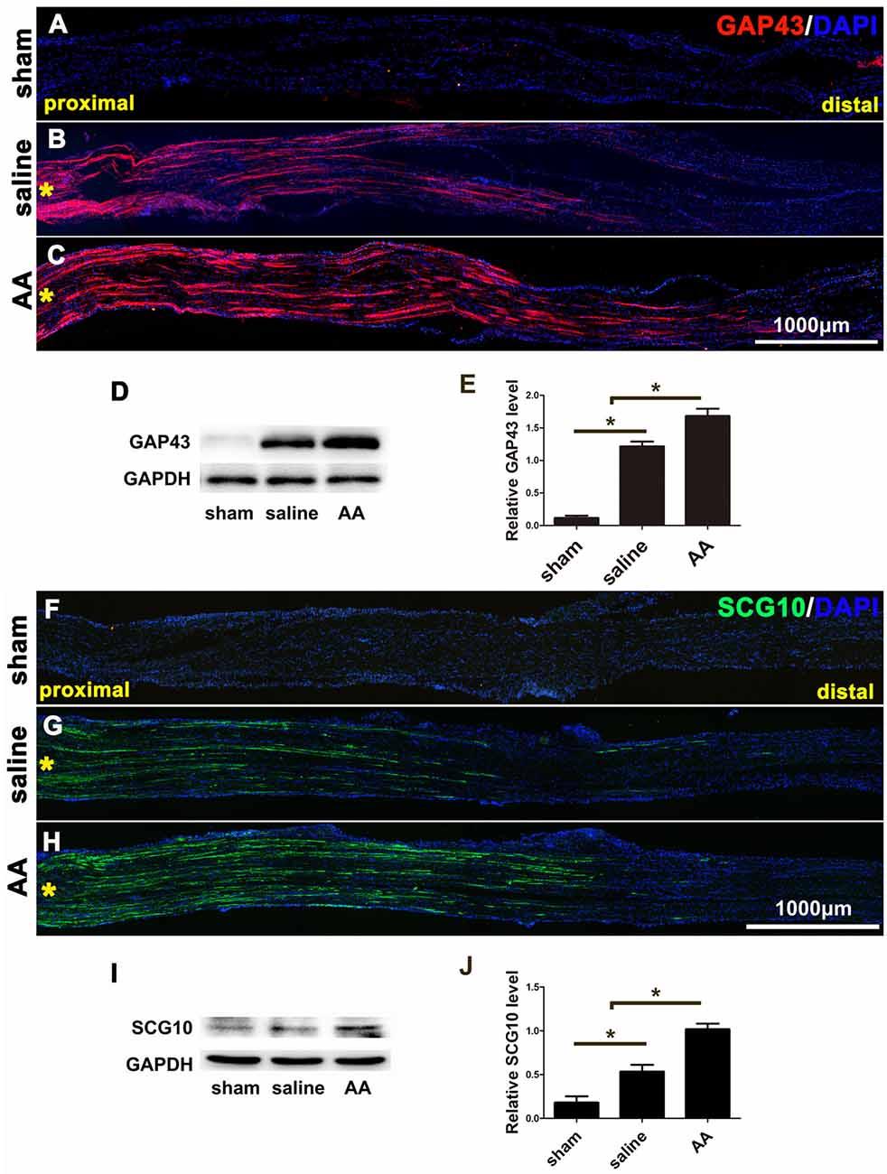 Frontiers | Ascorbic Acid Facilitates Neural Regeneration After