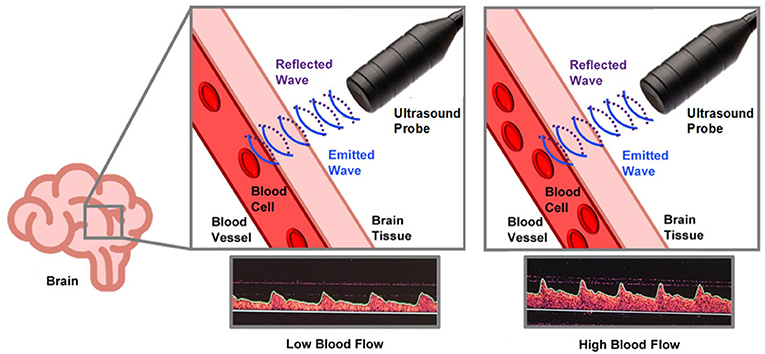 Figure 2 - How ultrasound is used to measure brain blood flow.