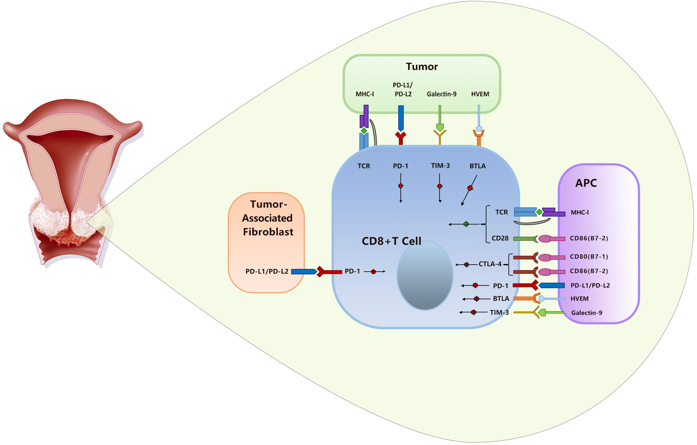 Frontiers | PD-1/PD-L1 Inhibitors in Cervical Cancer
