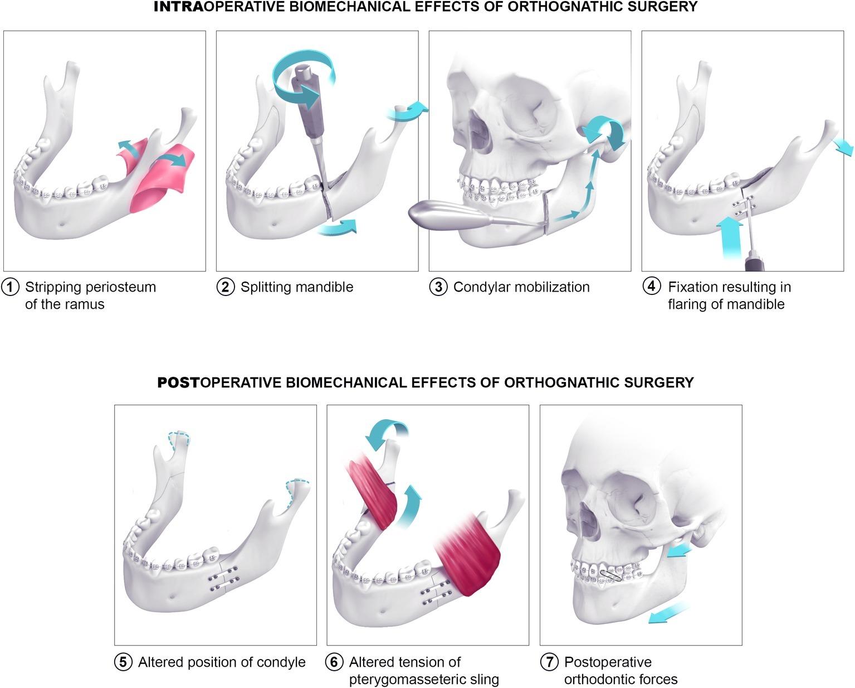 Frontiers The Biomechanical Effect Of The Sagittal Split Ramus