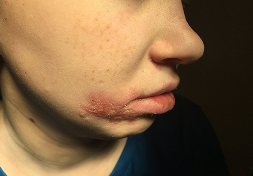 Frontiers | Severe Facial Herpes Vegetans and Viremia in