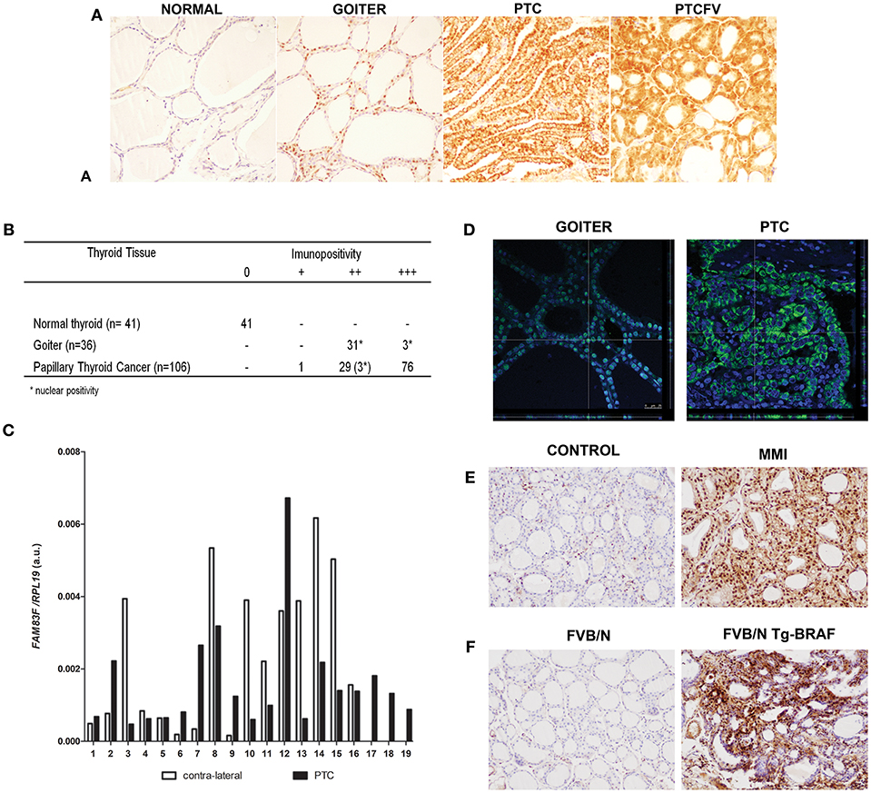 Frontiers | The Highly Expressed FAM83F Protein in Papillary Thyroid