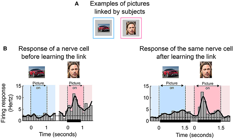 Figure 3 - (A) Our patients were asked to make links between different pictures, for example, the image of the red car with the image of the actor Brad Pitt.