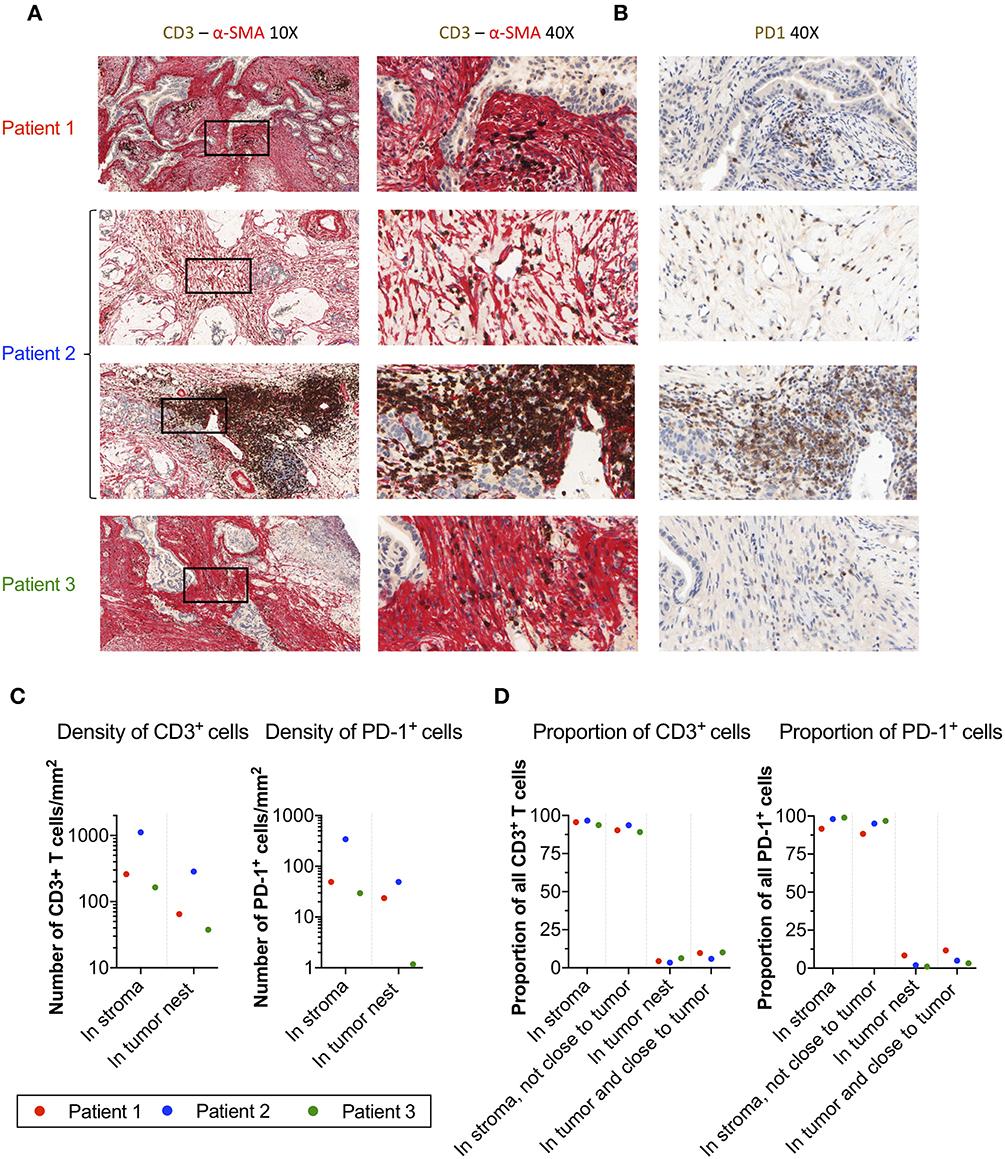 Frontiers | Human Pancreatic Carcinoma-Associated