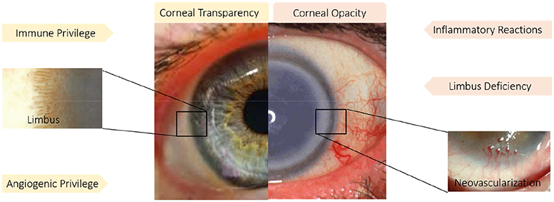 Frontiers | Corneal Repair and Regeneration: Current