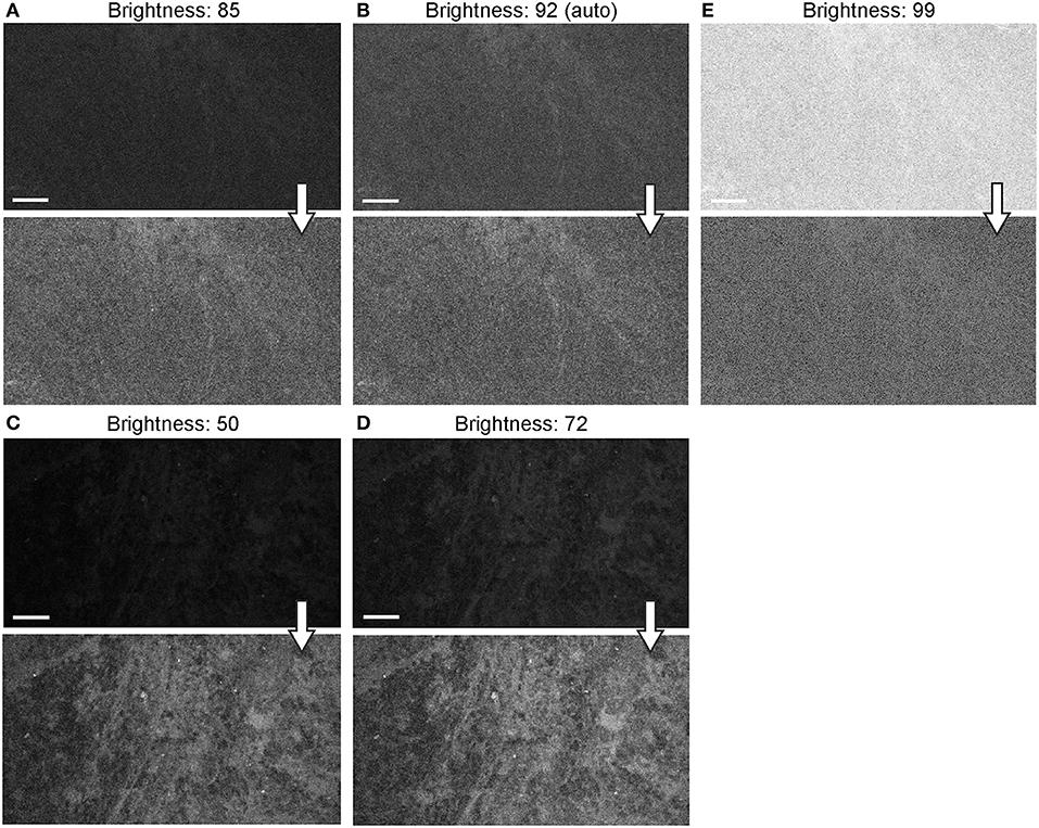 Frontiers | Progress in Confocal Laser Endomicroscopy for