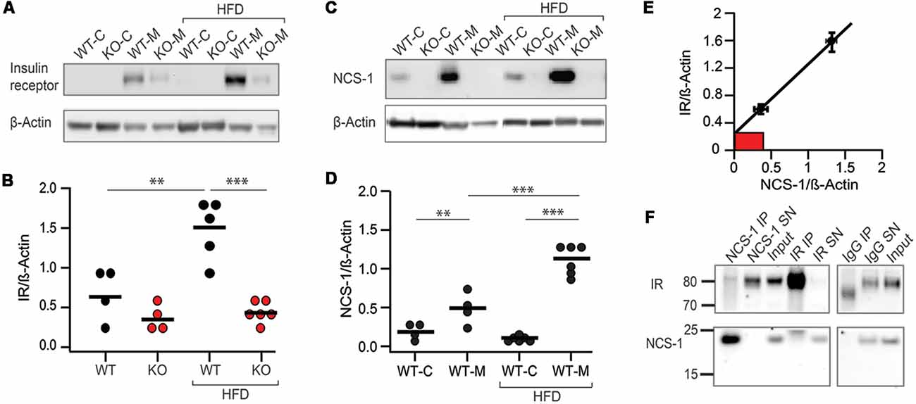 Frontiers | NCS-1 Deficiency Is Associated With Obesity and