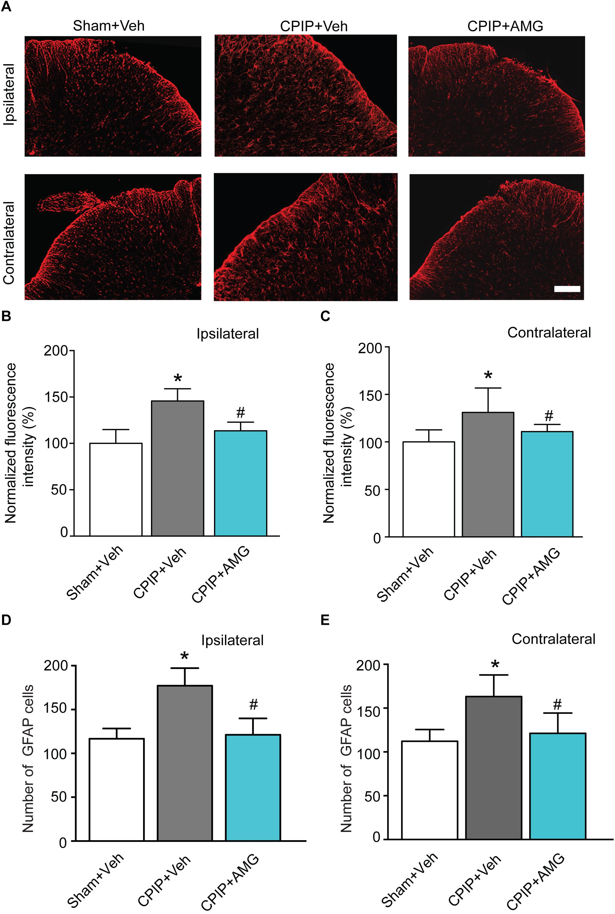 Frontiers | TRPV1 Channel Contributes to the Behavioral