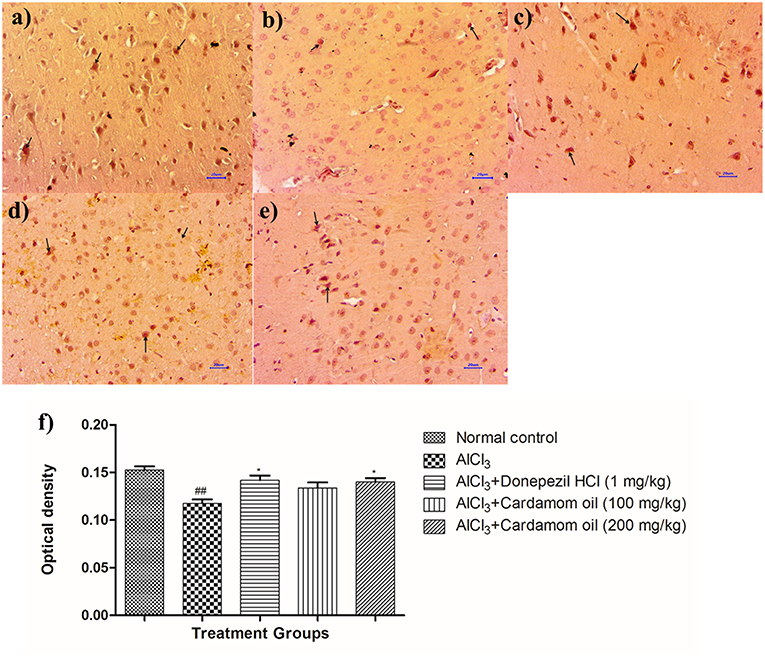 Frontiers | Neuroprotective Effect of Cardamom Oil Against Aluminum