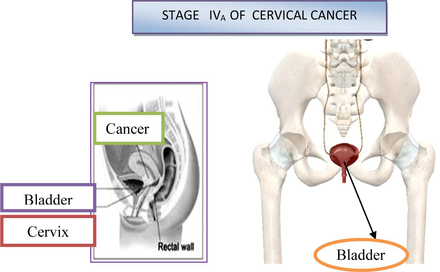 Frontiers Cervical Cancer Different Treatments And Importance Of Bile Acids As Therapeutic Agents In This Disease Pharmacology