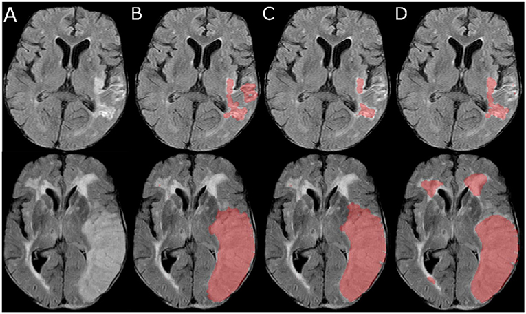 Frontiers | Stroke Lesion Segmentation in FLAIR MRI Datasets