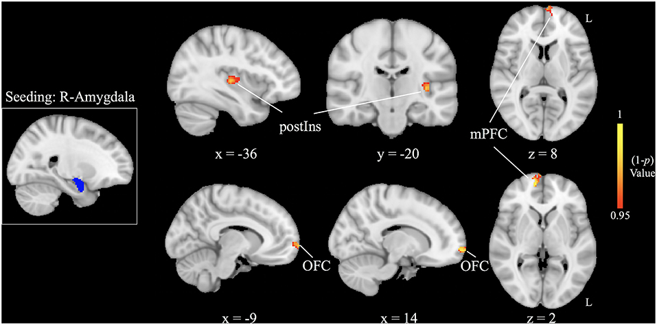 Frontiers   Structural and Functional Amygdala Abnormalities