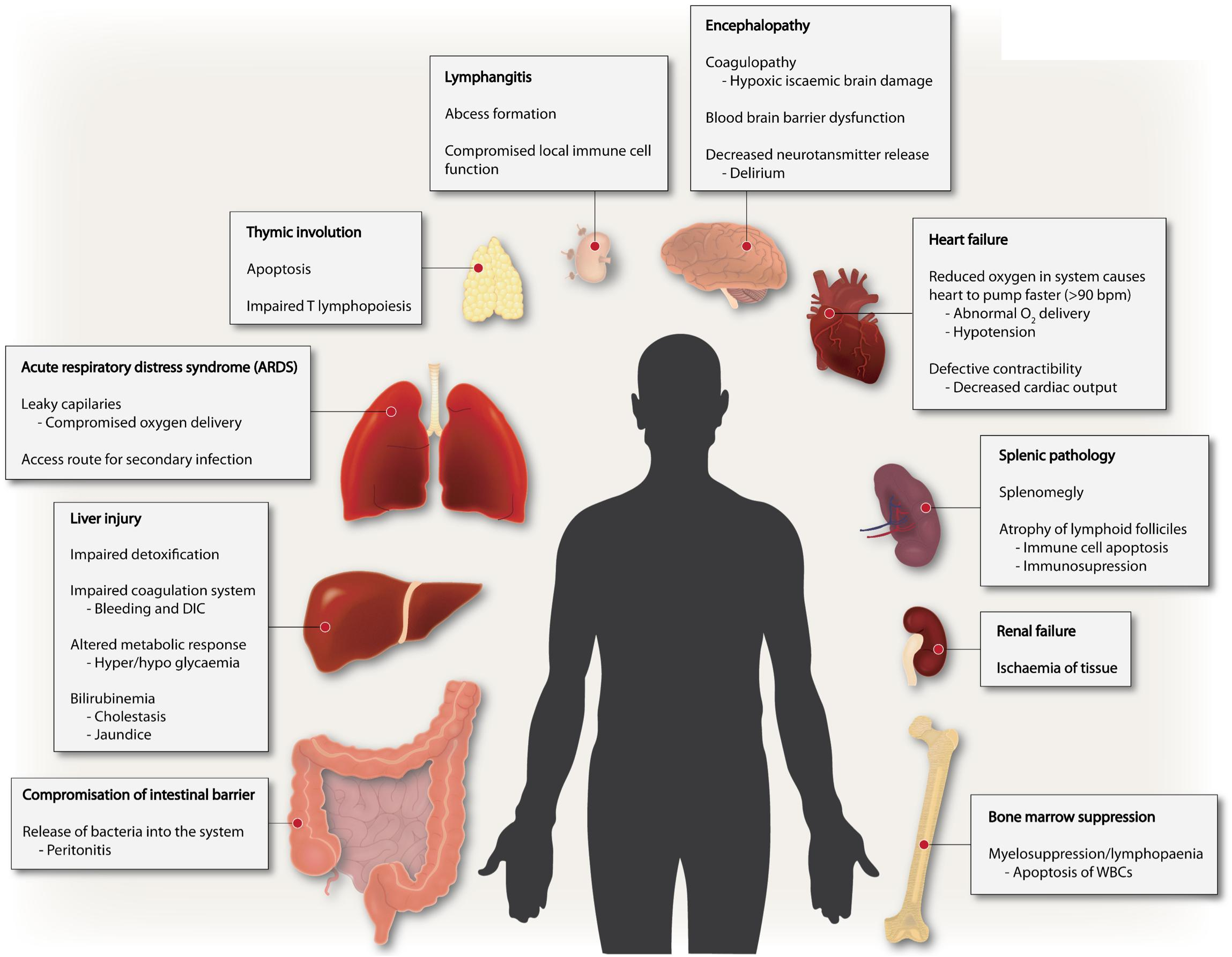 helminth infection sepsis)
