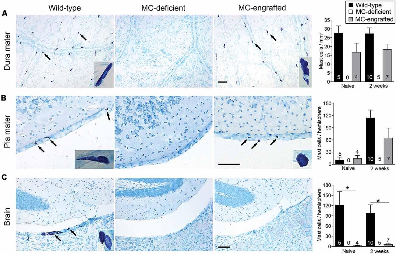 Frontiers | Meningeal Mast Cells as Key Effectors of Stroke