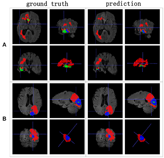 Frontiers | Nested Dilation Networks for Brain Tumor