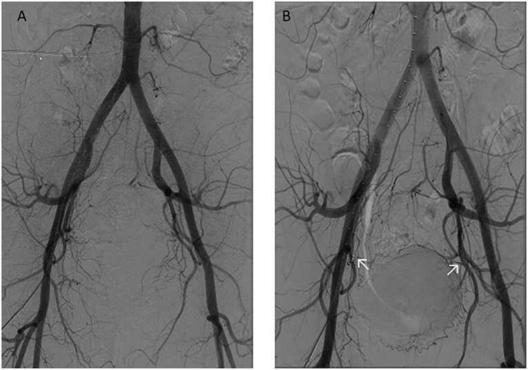 Frontiers Endometriotic Mass After Hysterectomy In A 61 Year Old Post Menopausal Woman A Case Report And Update Surgery