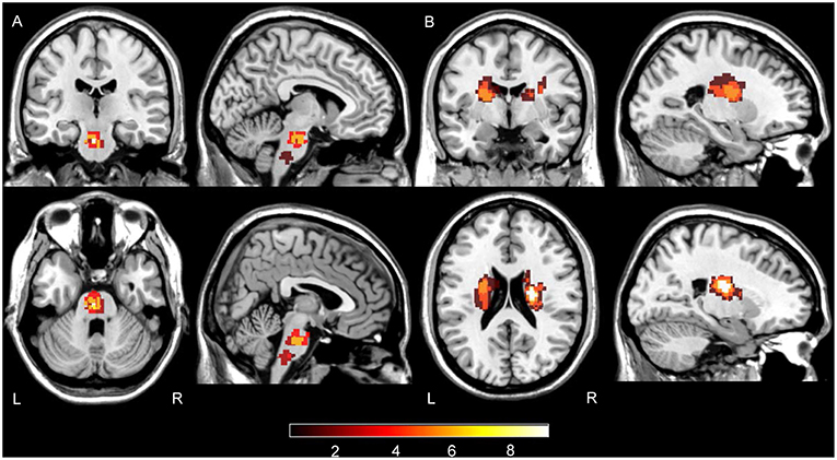 Frontiers Ischemic Stroke In Pontine And Corona Radiata Location Specific Impairment Of Neural Network Investigated With Resting State Fmri Neurology