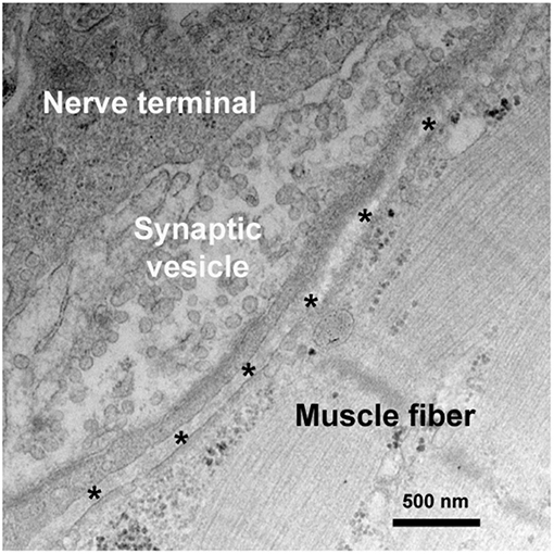Frontiers | Autoimmune Channelopathies at Neuromuscular Junction