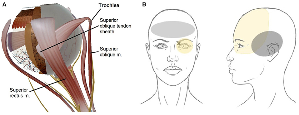 Frontiers   Diagnosis and Management of Trochleodynia, Trochleitis