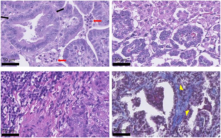 adenocarcinoma acinar multifocale della prostata