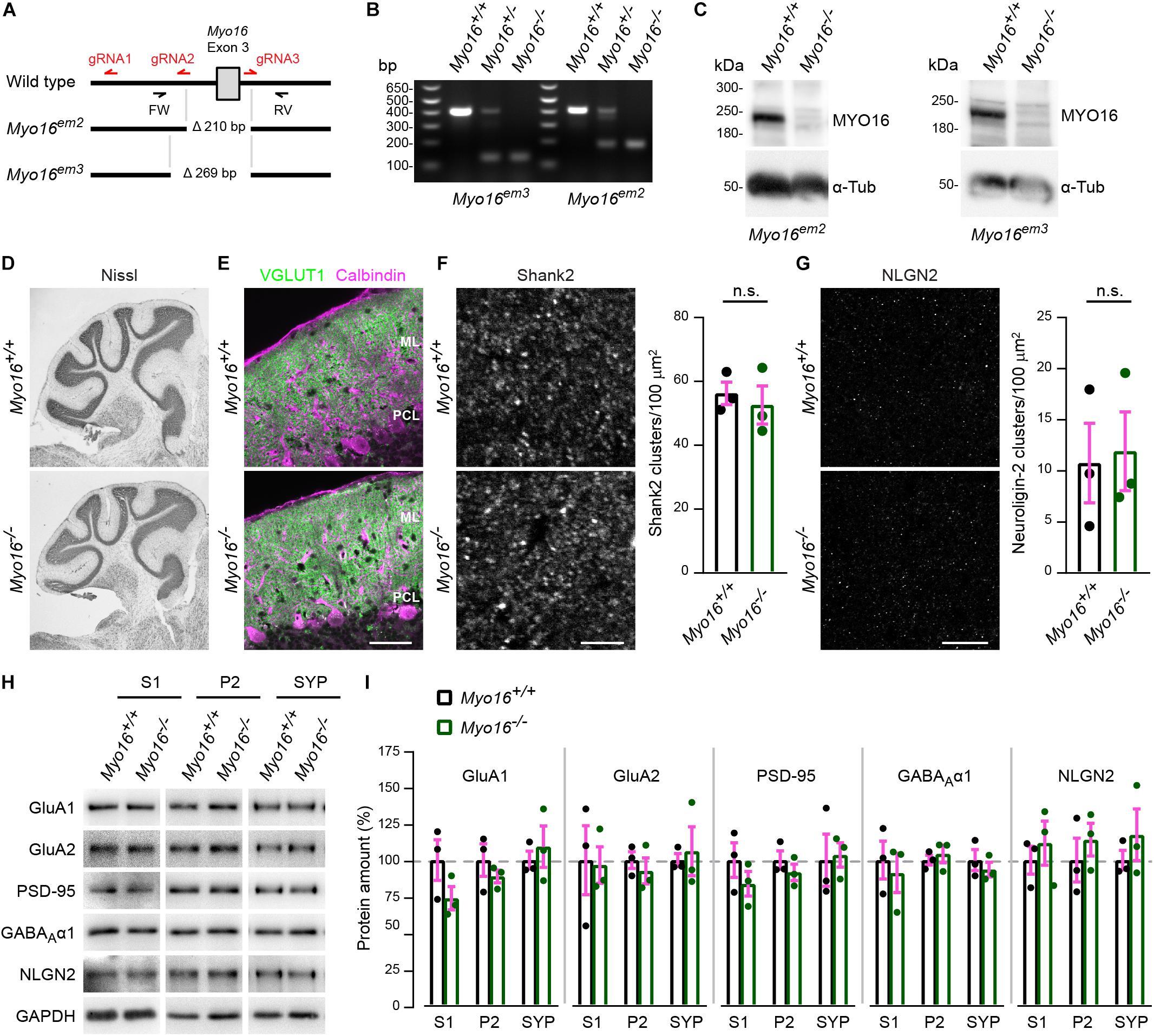 Frontiers | Myosin XVI Regulates Actin Cytoskeleton Dynamics