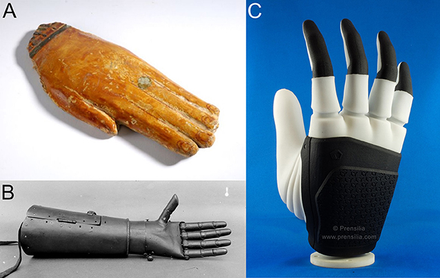 Figure 1 - Evolution of hand prostheses.
