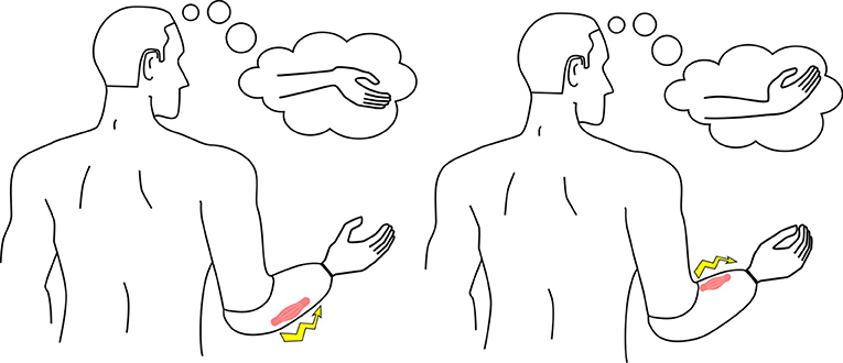 Figure 3 - When only the hand is missing, the muscles in the forearm are used to control myoelectric prostheses.