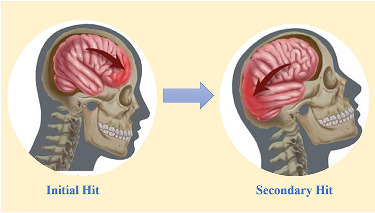 Figure 2 - One hit can damage two parts of the brain: the coup and countercoup model.