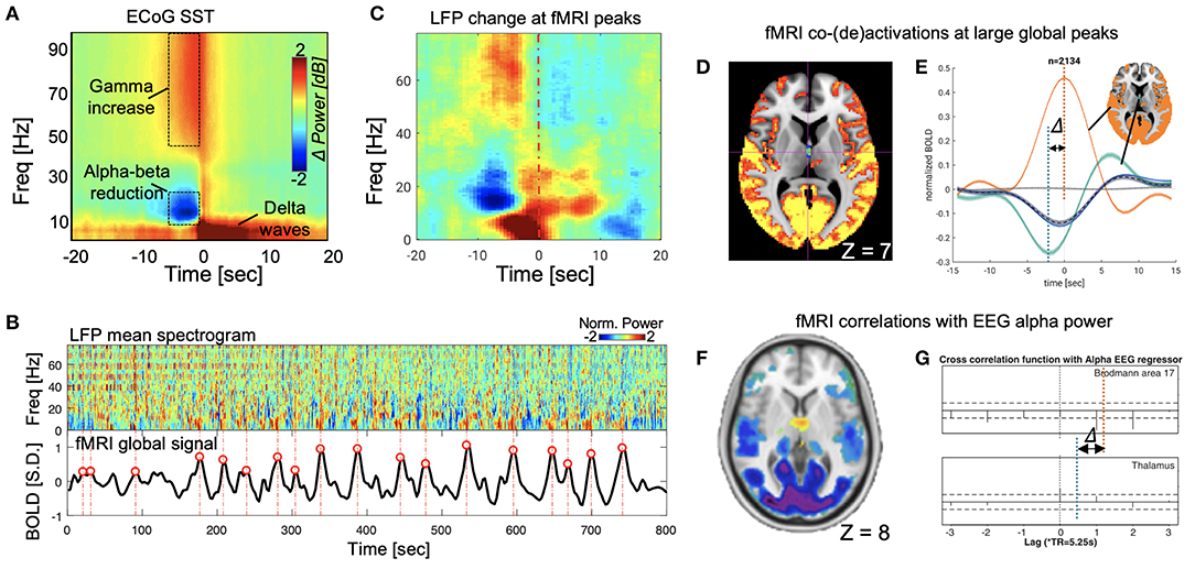 Frontiers | A Neurophysiological Event of Arousal Modulation