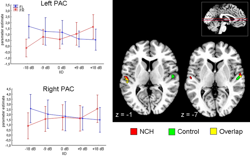 Frontiers the role of the primary auditory cortex in the neural frontiersin ccuart