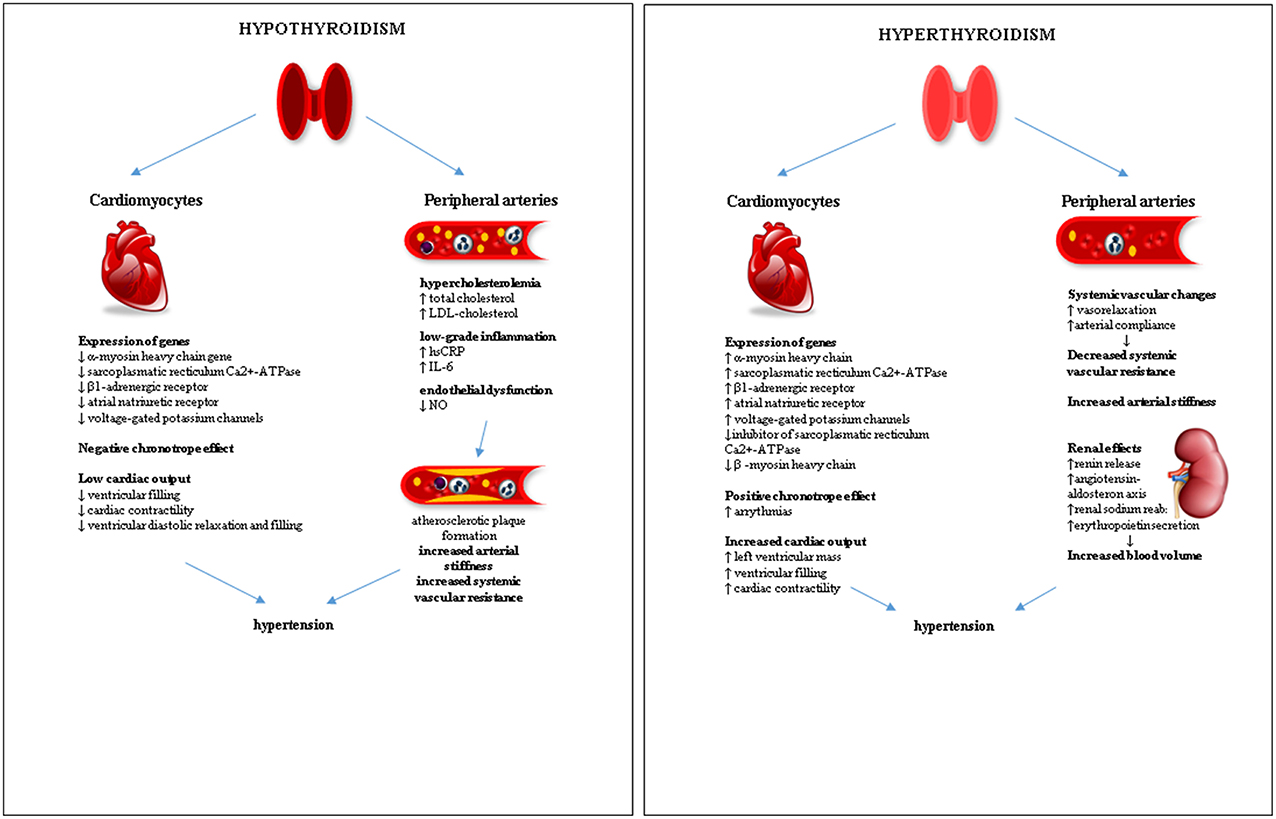 Frontiers Hypertension In Thyroid Disorders Endocrinology