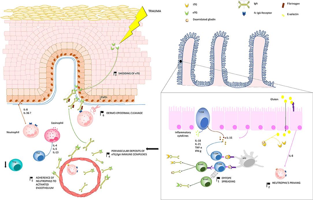 Frontiers | Dermatitis Herpetiformis: Novel Perspectives | Immunology