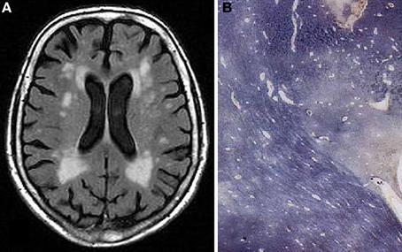 Chronic microvascular ischemic white matter disease icd 10