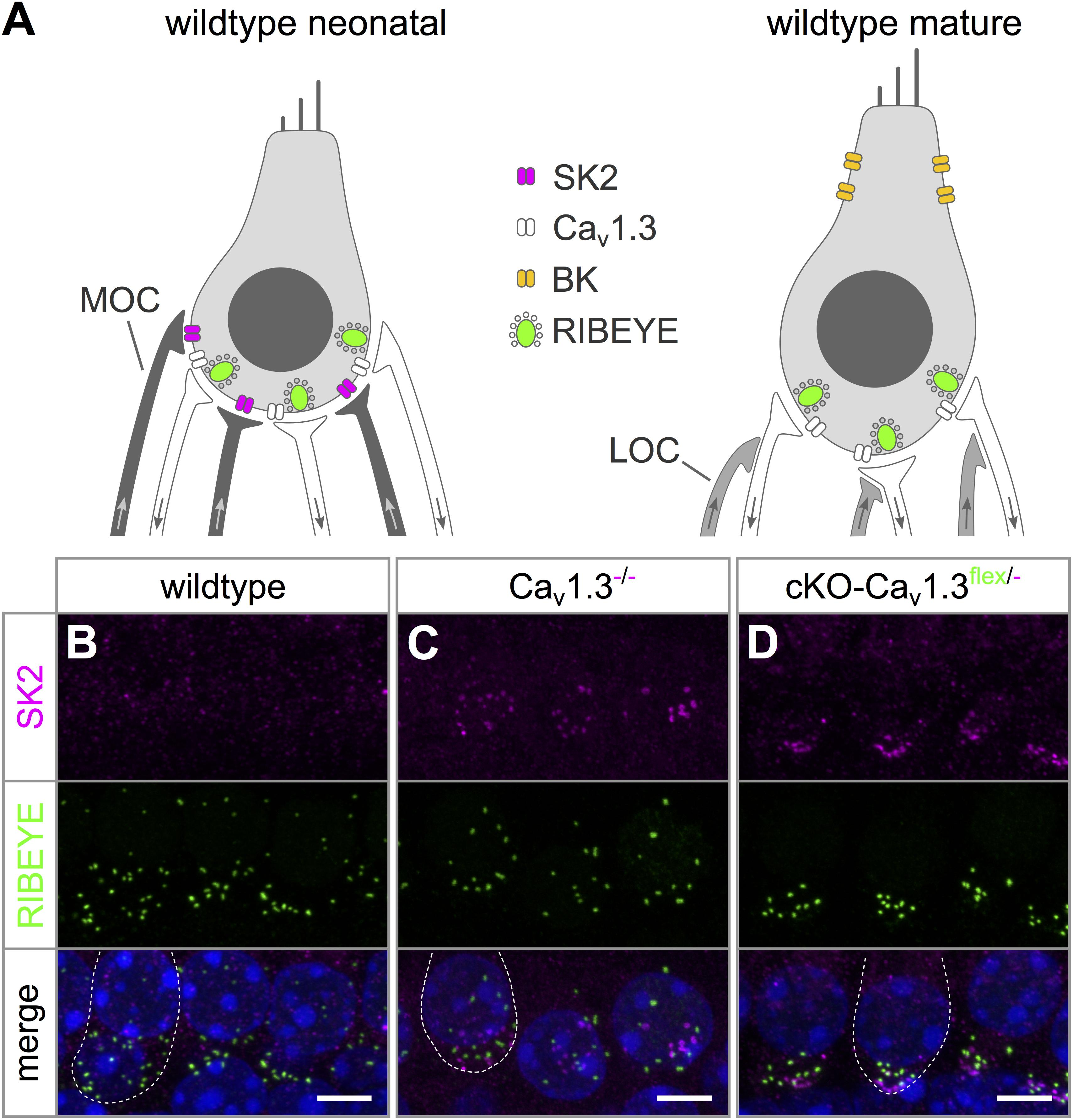 Frontiers   Cochlea-Specific Deletion of Cav1.3 Calcium ...
