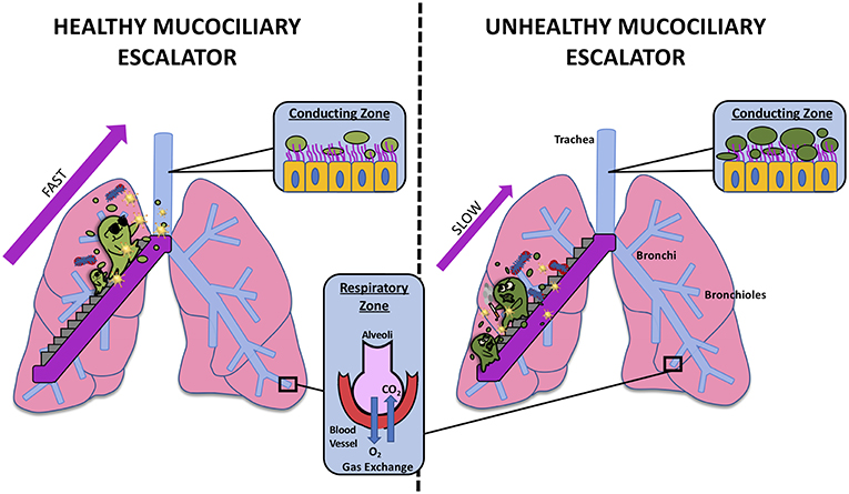 Figure 1 - The mucociliary escalator in a healthy person (left) and in a person with a diseased mucociliary escalator (right).