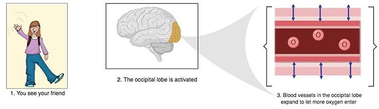 Figure 3 - Brain activity leads to a hemodynamic response.