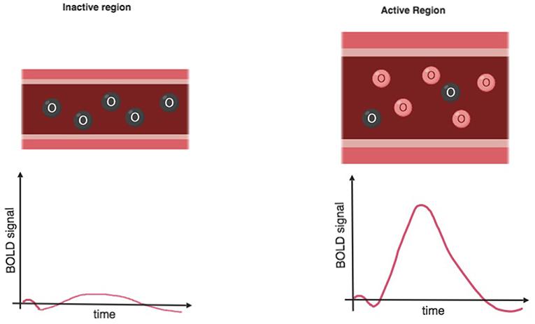 Figure 4 - Bold oxygenation level dependent (BOLD) signal.