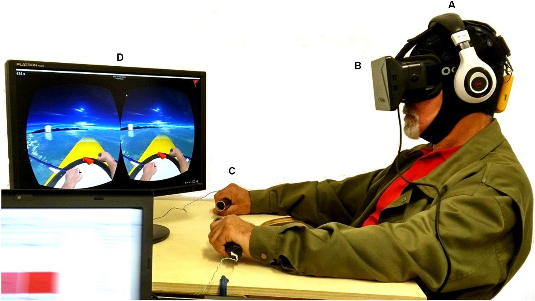 [ARTICLE] Efficacy and Brain Imaging Correlates of an Immersive Motor Imagery BCI-Driven VR System for Upper Limb Motor Rehabilitation: A Clinical Case Report – Full Text