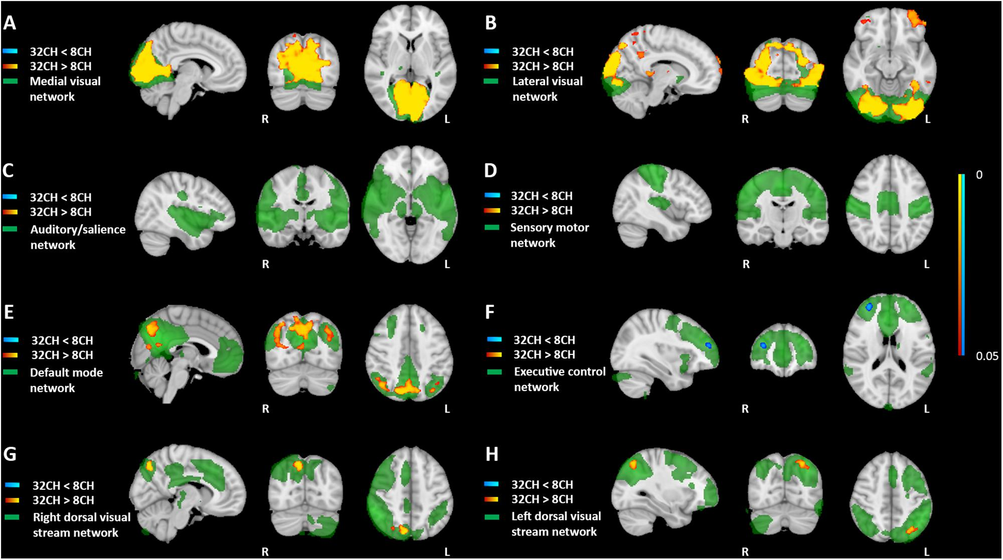 Frontiers   Bias Introduced by Multiple Head Coils in MRI