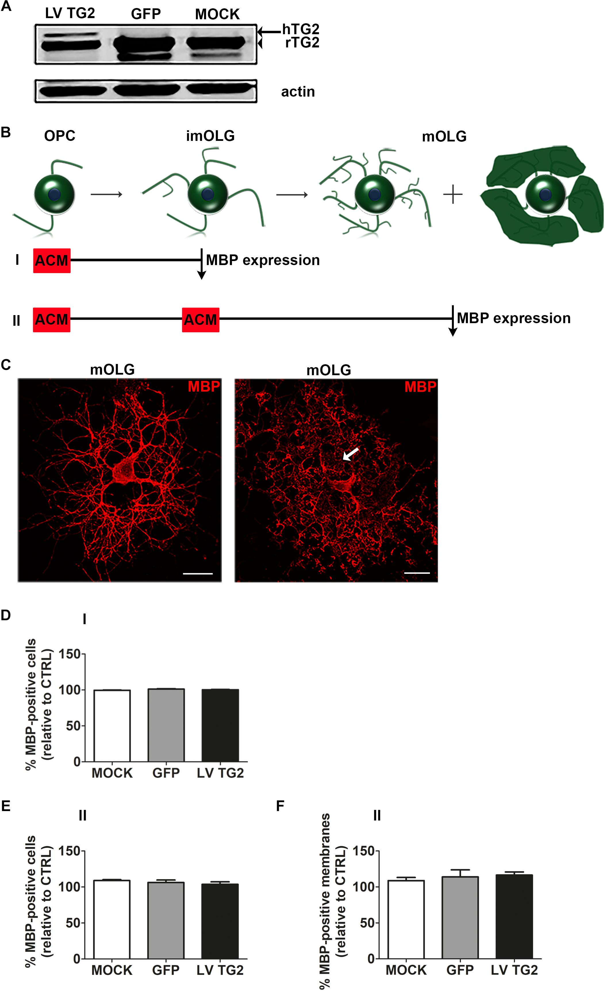 Frontiers | Tissue Transglutaminase Promotes Early ... on