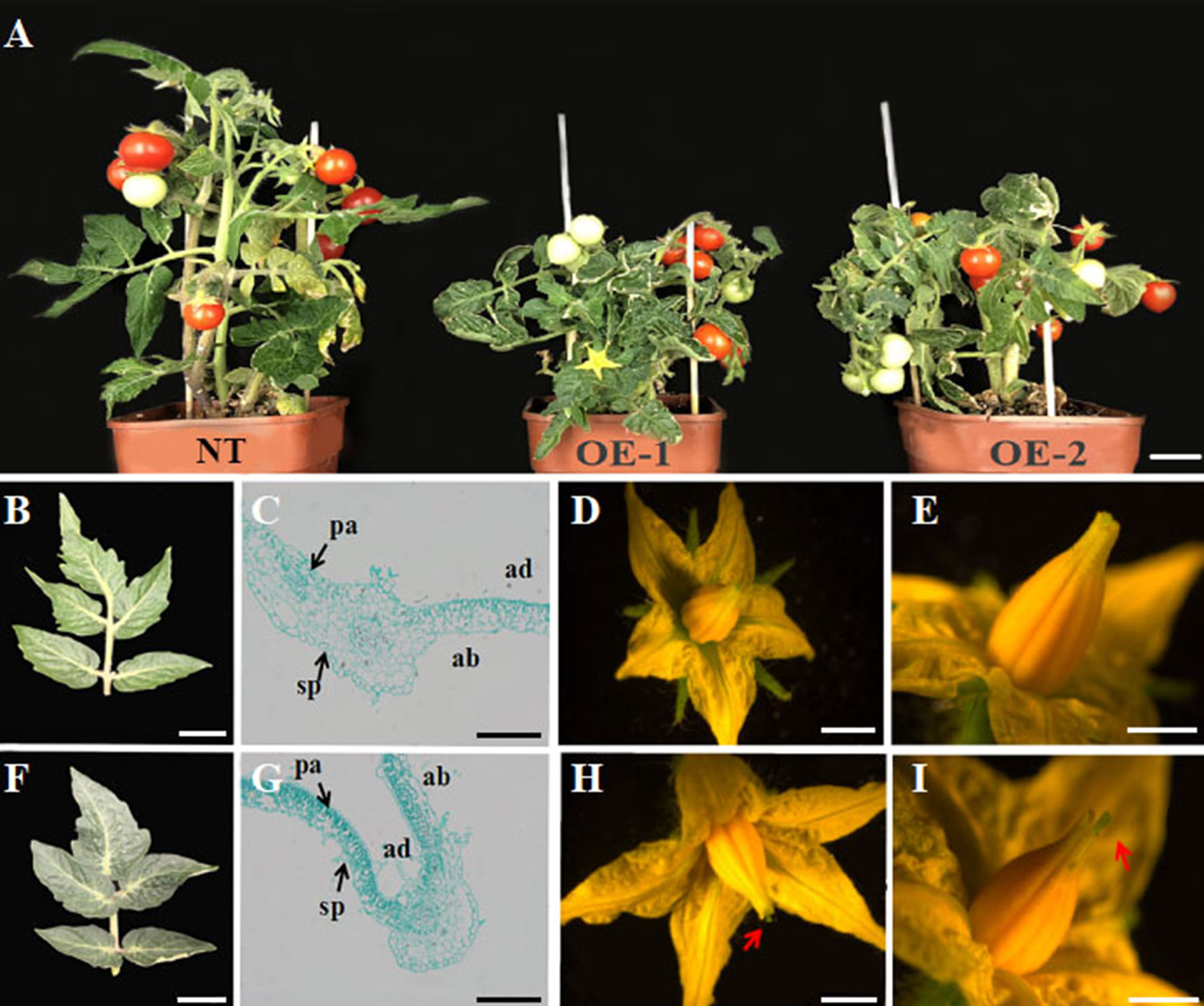 Frontiers Genome Wide Analysis Of The Yabby Gene Family In Grapevine And Functional Characterization Of Vvyabby4 Plant Science