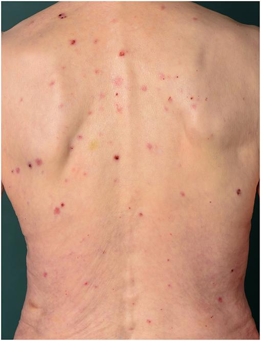 Frontiers Pruritus In Autoimmune And Inflammatory Dermatoses