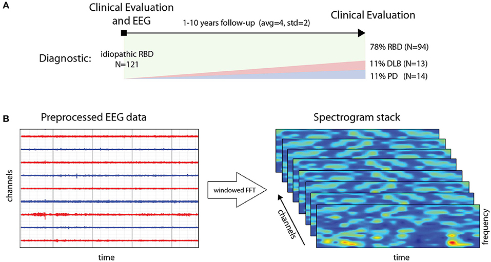 Frontiers   Deep Learning With EEG Spectrograms in Rapid Eye