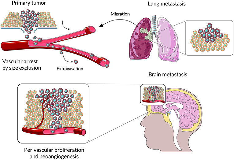 Frontiers Immune Microenvironment Of Brain Metastases Are Microglia And Other Brain Macrophages Little Helpers Immunology